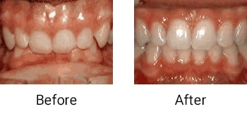 deep overbite lower front teeth vite into plate
