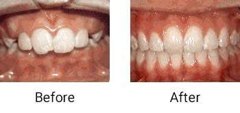 overjet protruding front teeth