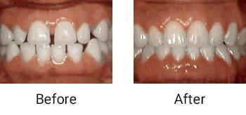 spacing of teeth
