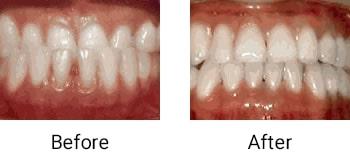 underbite lower front teeth in front of upper teeth
