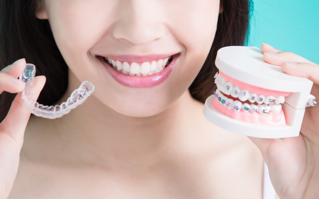 metal braces vs invisalign which is best