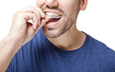 Protect Your Teeth From Sleep Bruxism With a Mouthguard