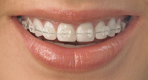 radiance clear braces in innisfil