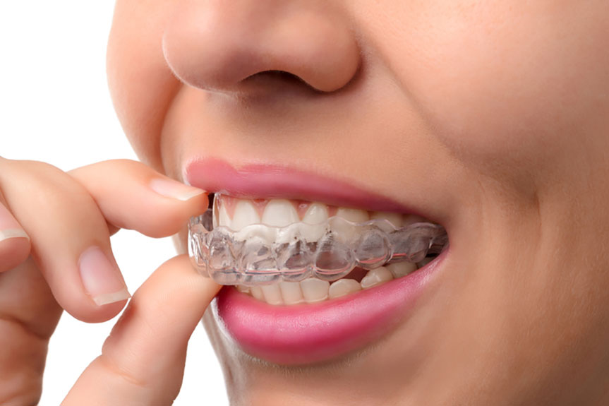 invisalign the best option for adults