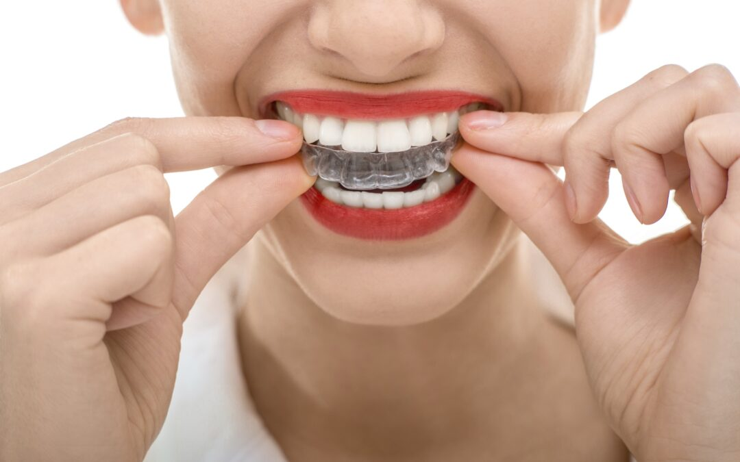 why invisalign is trending in two zero two one